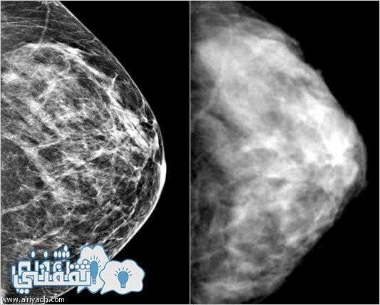 آشعة موضحة لسرطان الثدي