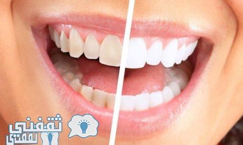 طريقة تبييض الاسنان في المنزل بدون طبيب ونتائج مضمونة وسريعة .. شاهد بالفيديو