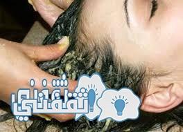 الجرجير لتساقط الشعر