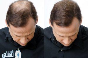وصفة بسيطة لعلاج مشاكل الشعر وتساقطه وملئ الفراغات والصلع الوراثي في شهر واحد فقط