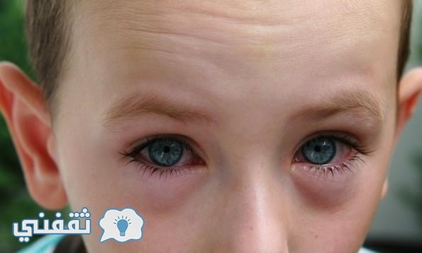 علاج أمراض العين وضعف الإبصار