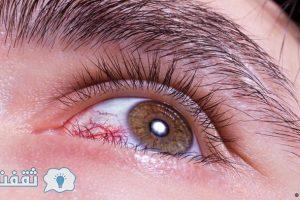 علامات خطيرة اذا وجدت فى عينك فأنك مصاب بمرض خطير