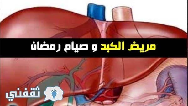 نصائح مهمة لمرضى الكبد في شهر رمضان