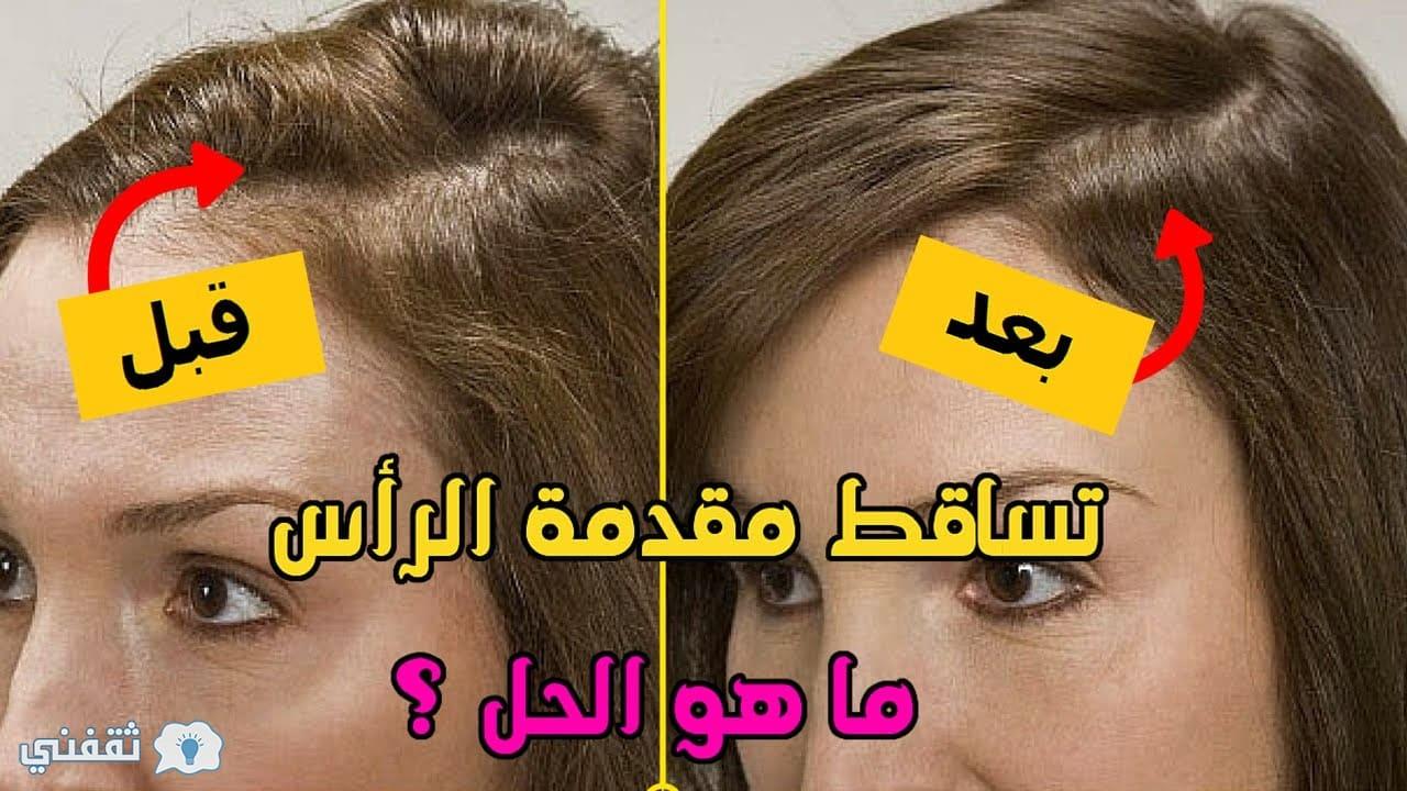 طريقة سحرية من أجل إطالة و تكثيف الشعر و إنبات الفراغات عن طريق نواة التمر