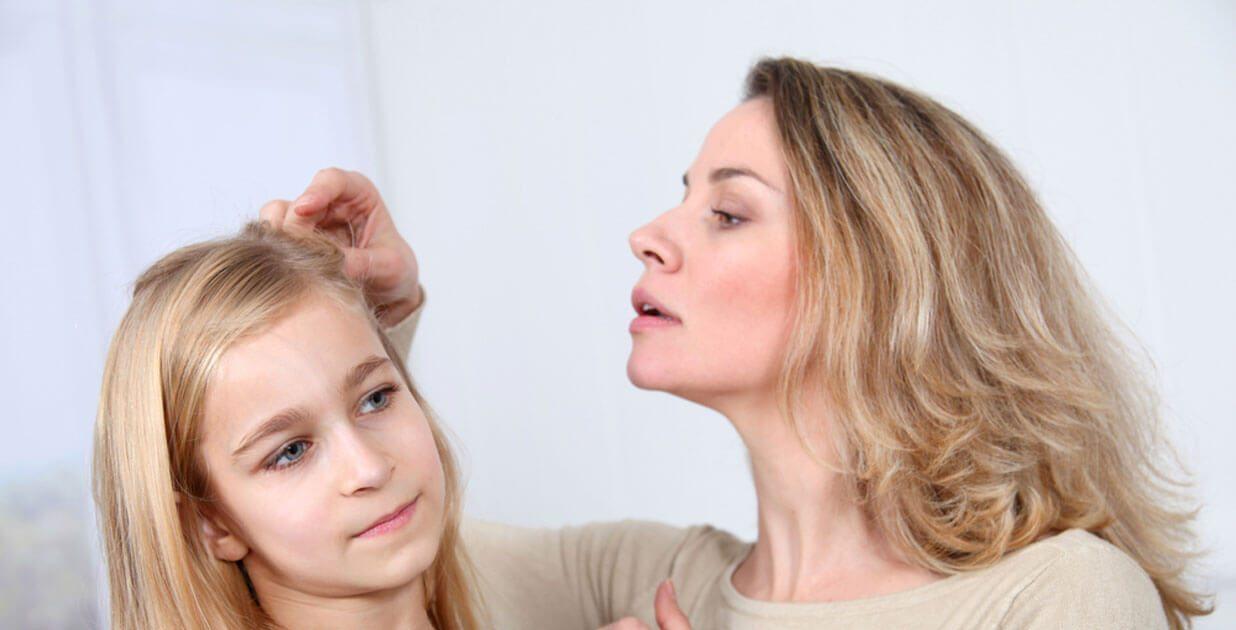 طرق علاج قمل الشعر