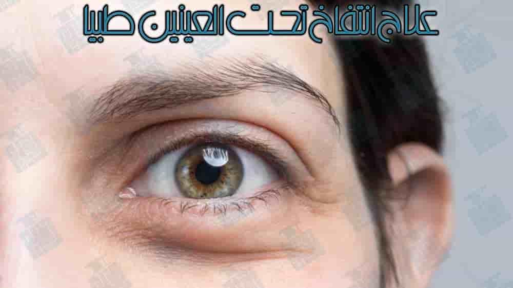 أسباب وطرق التخلص من انتفاخ العين نهائيا Youtube