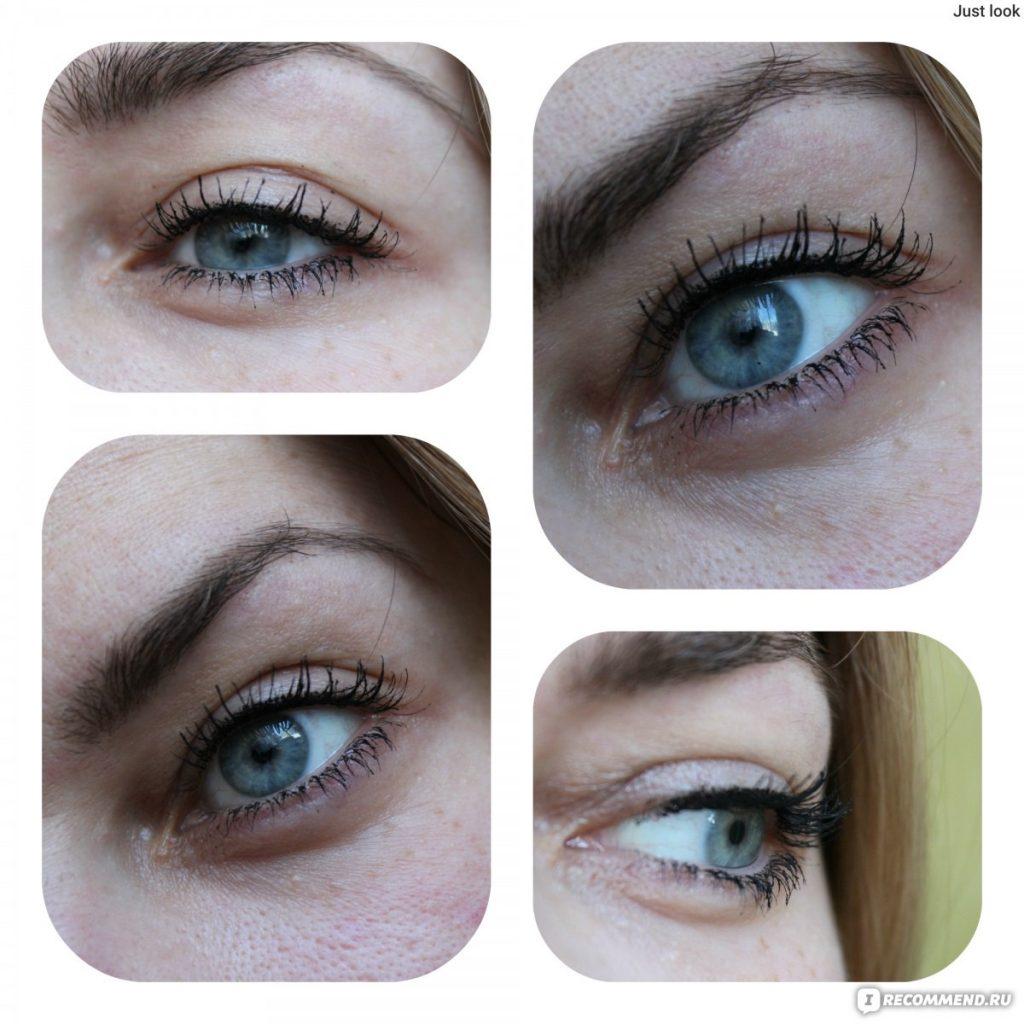 علاج اسمرار اسفل العين