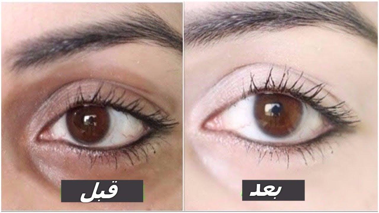 وصفة سحرية جبارة للتخلص من الهالات السوداء تحت العين والانتفاخات حول العين